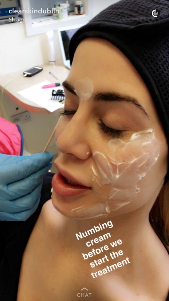 clearskin dublin, kim kardashian, beauty, vampire facial, anti aging, youth, young, scar, under eye treatment, under eye circle, dark under eye circle, skin, wrinkles, dublin, beauty treatments, face lift,